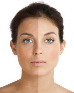 Problemy ze skórą i cerą