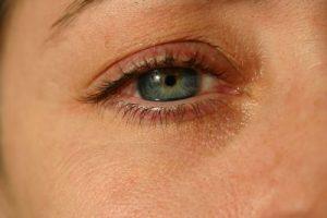 Jak pozbyć się cieni pod oczami?
